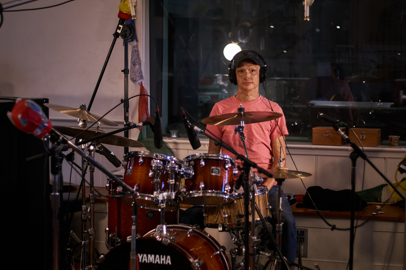 Young man with burn scars on face and wearing a ball cap sitting at a drumkit.