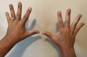 Two hands side-by-side with fingers and thumb splayed out.